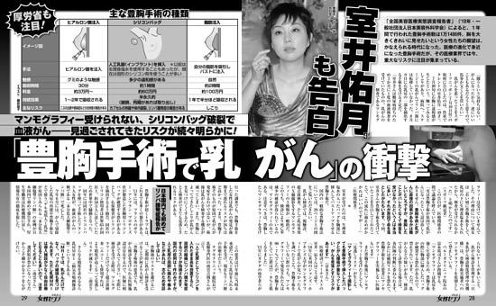 室井佑月も告白!「豊胸手術で乳がん」の衝撃